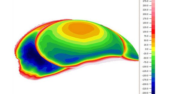 what optometry practice uses a corneal topographer